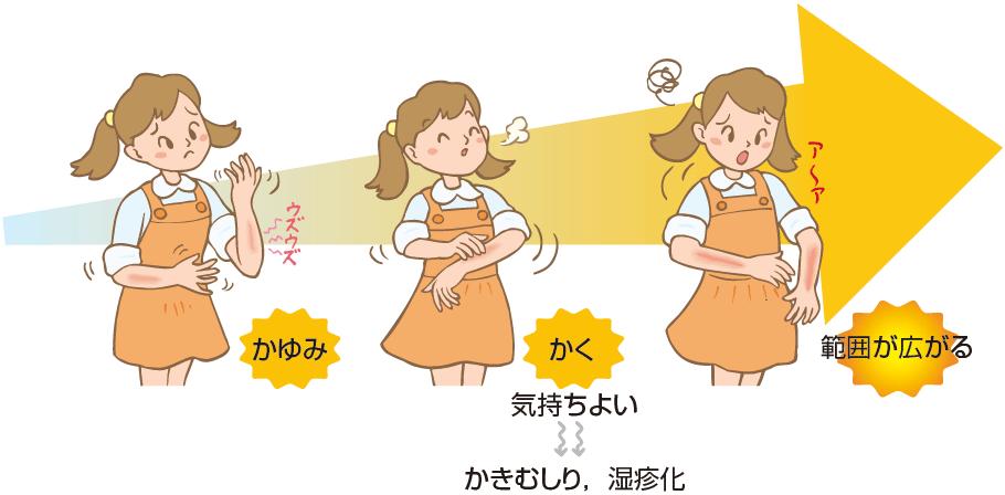 かゆみ→かく(気持ちよい→かきむしり、湿疹化)→範囲が広がる