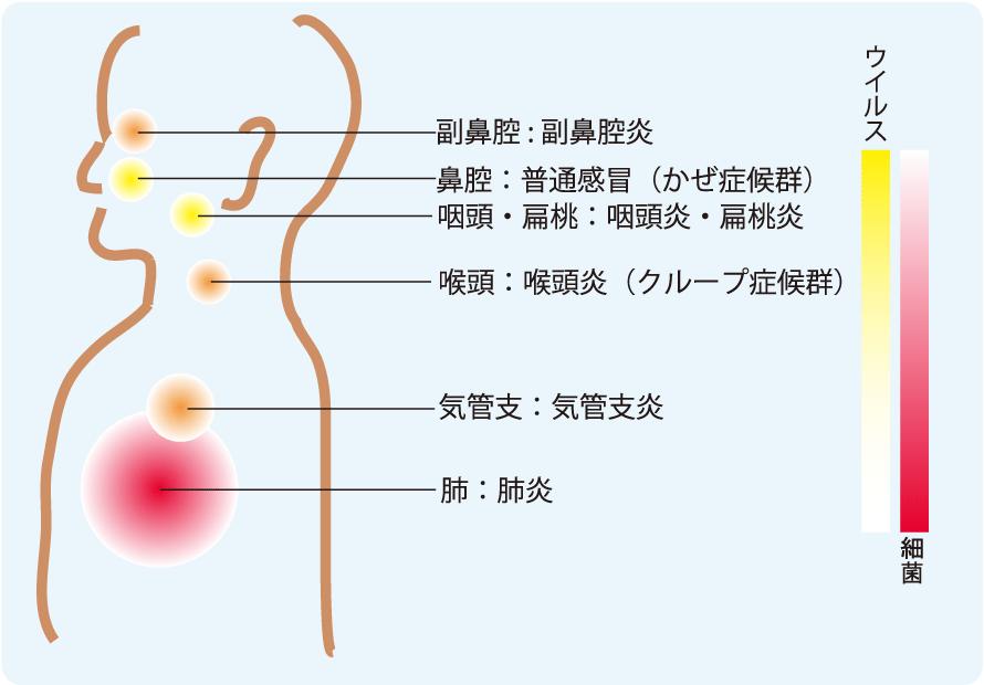 咽喉から痰を取り除く治療法